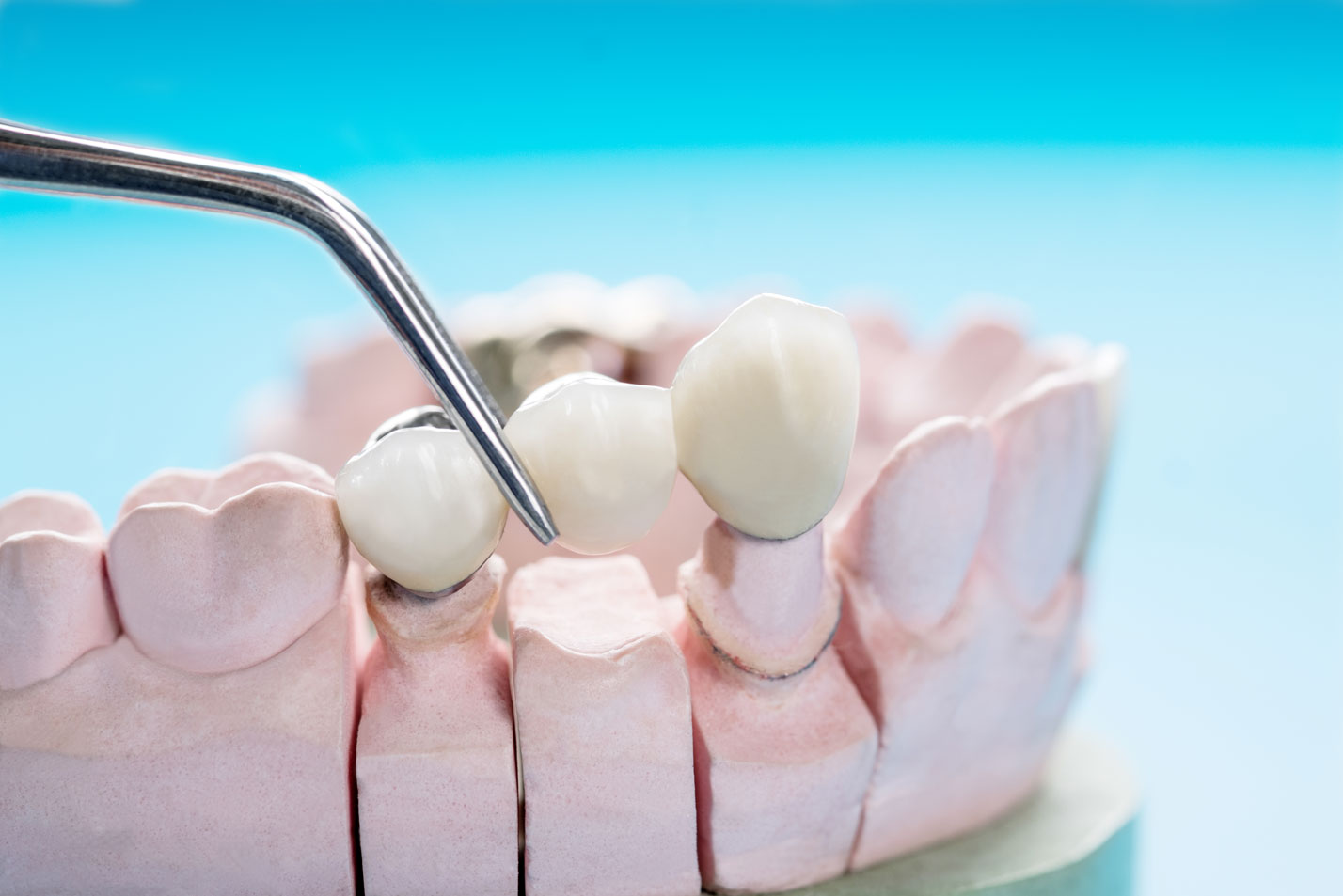 Что такое зубопротезирование: виды протезов и их описание, цена протезирования зубов в москве, советы врачей