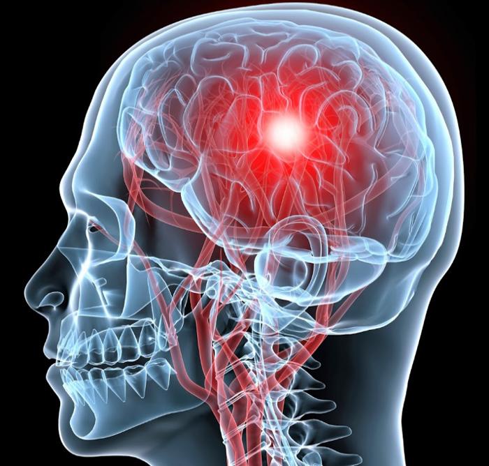 Что такое стволовой инсульт и прогноз выздоровления
