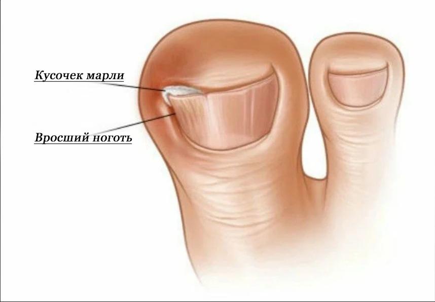Проблема вросшего ногтя на руке – как лечить медицинскими и народными методами
