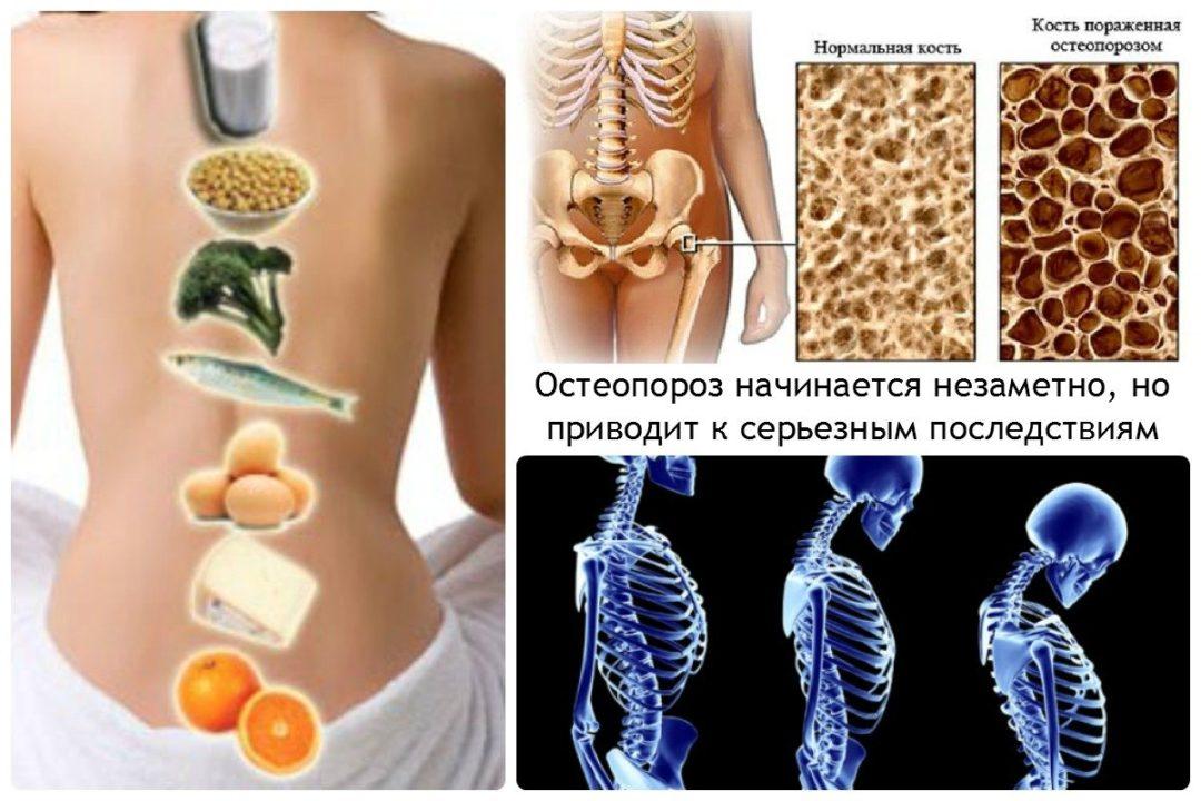 Каковы симптомы остеопороза и как его лечить