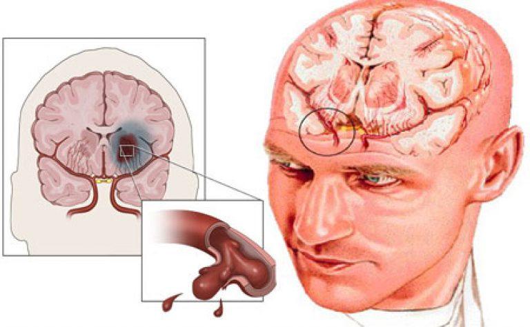Геморрагический инсульт — причины, лечение и прогноз, последствия