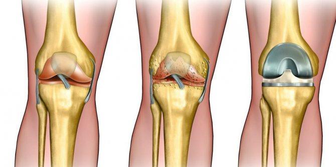 Гонартроз коленного сустава 2 степени лечение упражнениями, гимнастикой и диетой | sustav-info.ru