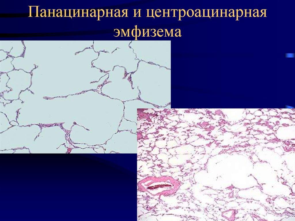 Парасептальная эмфизема легких что это такое | wine & water