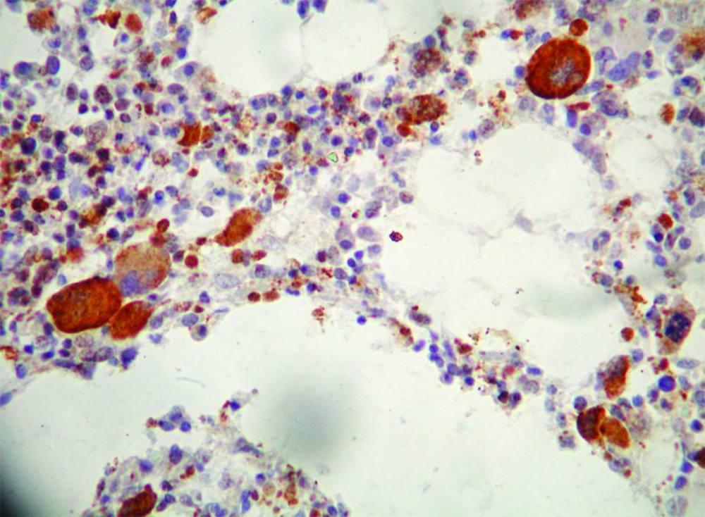 Игх при раке молочной железы: нормы и расшифровка