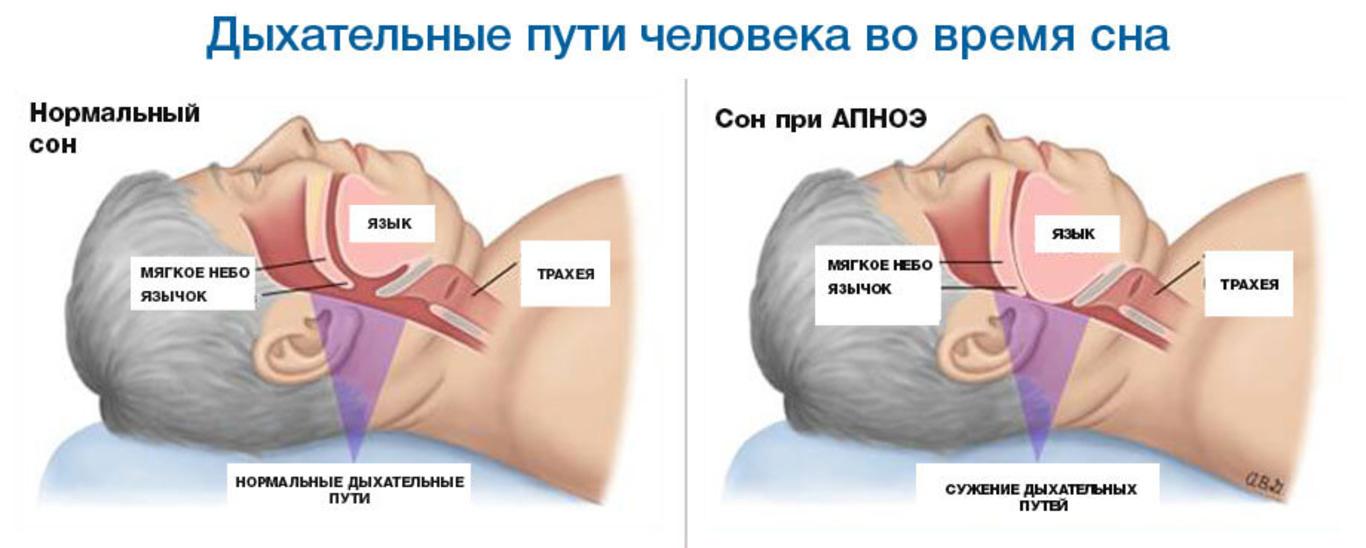 Апноэ: что это за болезнь, симптомы синдрома у взрослых и детей, диагностика, последствия