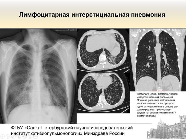 Что такое идиопатические интерстициальные пневмонии, как их лечить и почему они опасны для жизни?