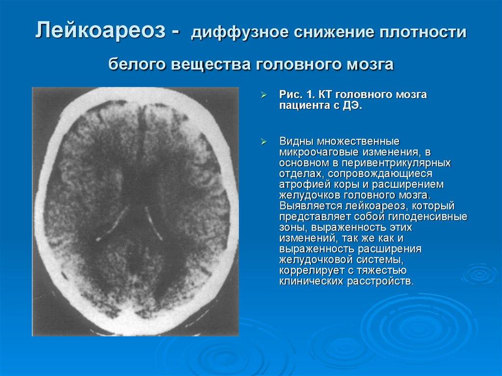 Лейкоареоз головного мозга: причины, симтомы и лечение