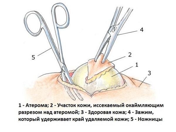 Липома - что это такое, лечение народными средствами, хирургическое удаление