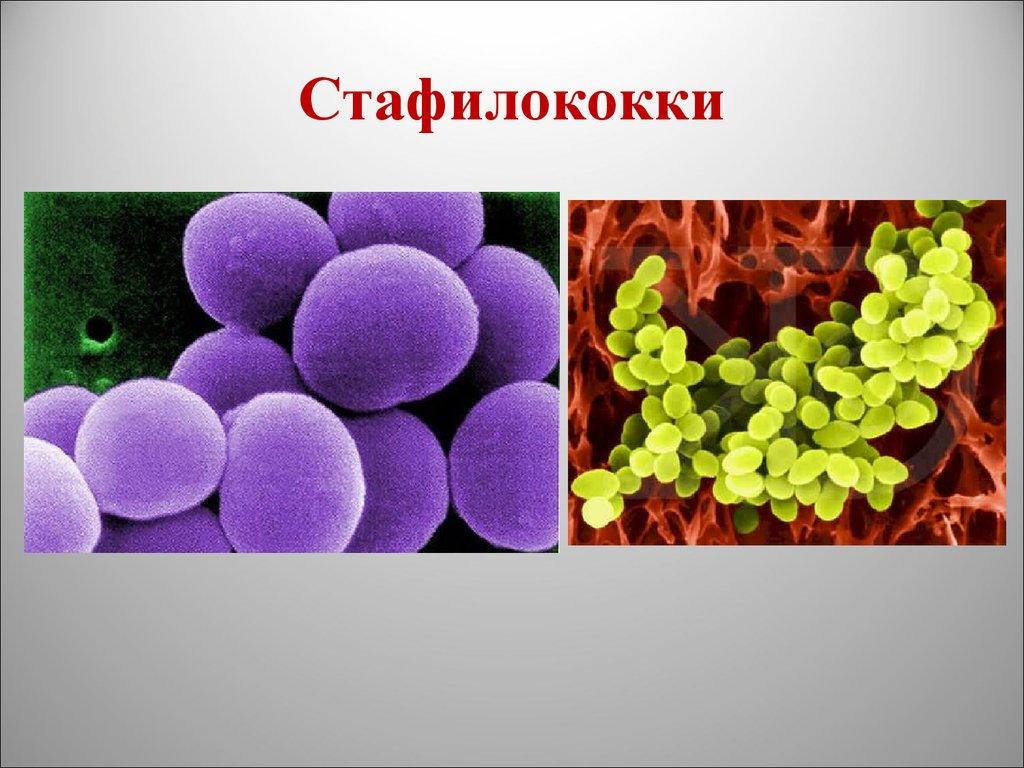 Staphylococcus epidermidis норма - помощь доктора