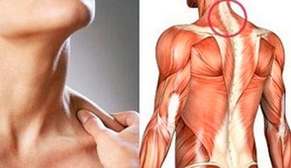 Миозит мышц – симптомы и лечение