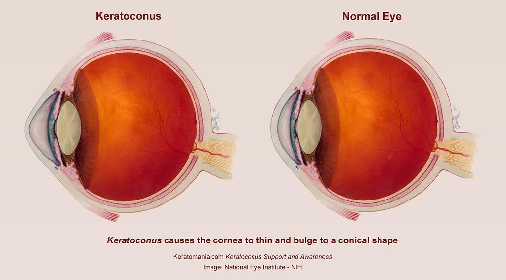 Артифакия: что это за вид операции, как она помогает лечить глаз и какие бывают виды хрусталиков