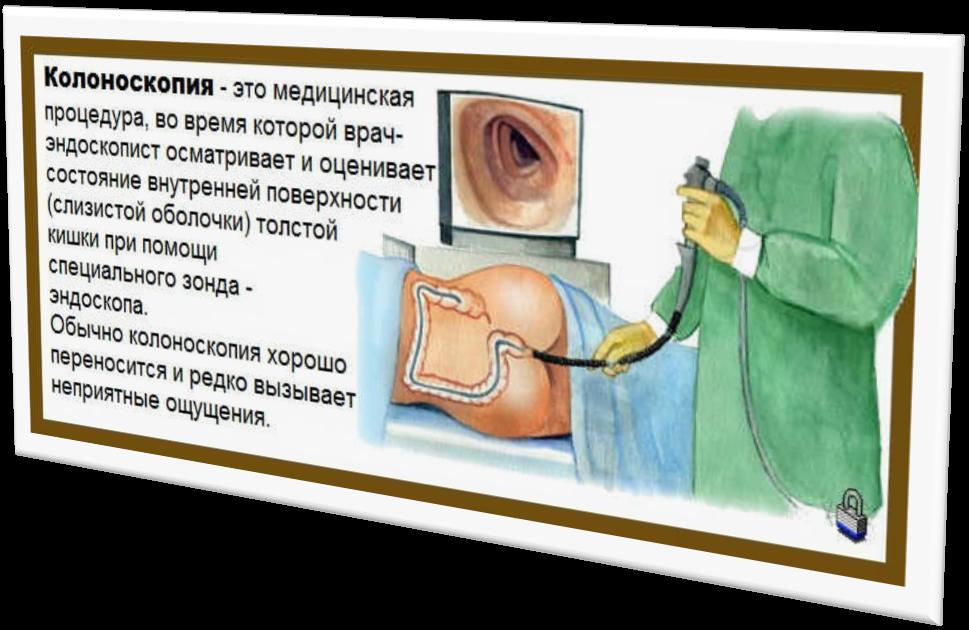 Что лучше колоноскопия или кт кишечника преимущества и недостатки