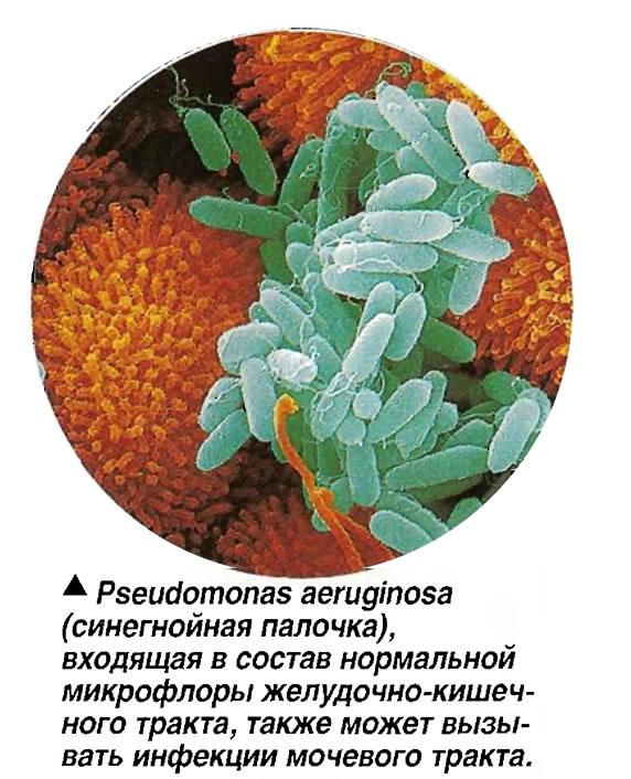 Основы лечения, диагностика и профилактика синегнойной палочки (инфекции). фото