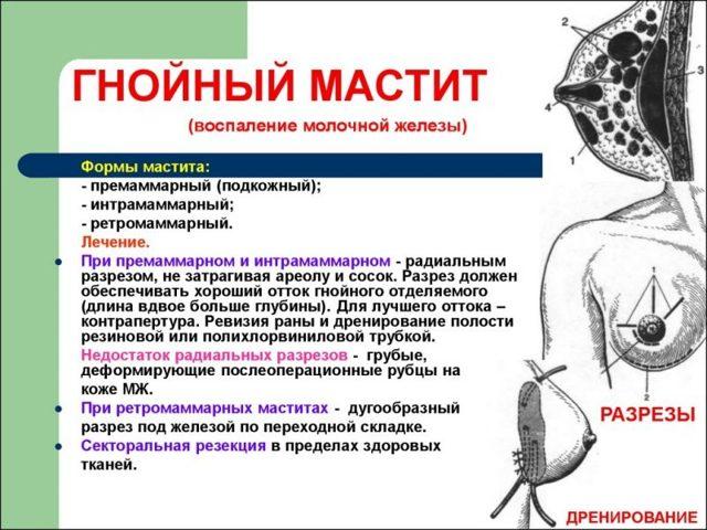 Мастит: диагностика и лечение | университетская клиника