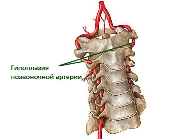 Гипоплазия левой/правой позвоночной артерии - что это такое? ответ здесь!