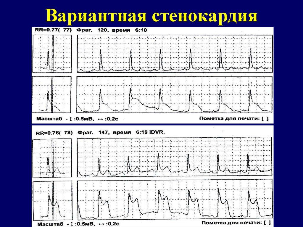 Вазоспастическая стенокардия симптомы