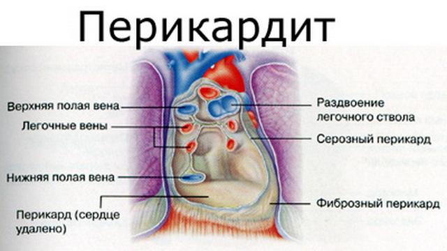 Перикардит: симптомы и лечение у взрослых и детей, причины болезни сердца