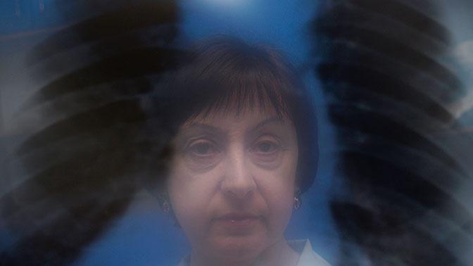Симптом матового стекла в легких