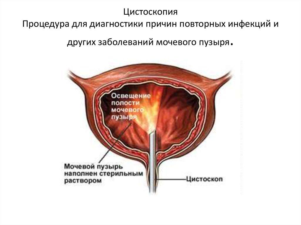 Цистоскопия - как проводиться, что такое