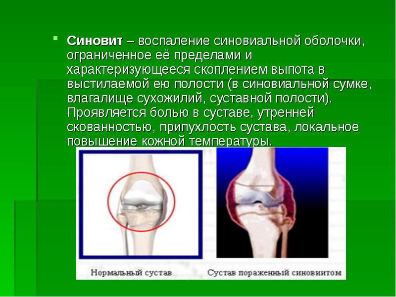 Как восстановить синовиальную жидкость (экссудат)