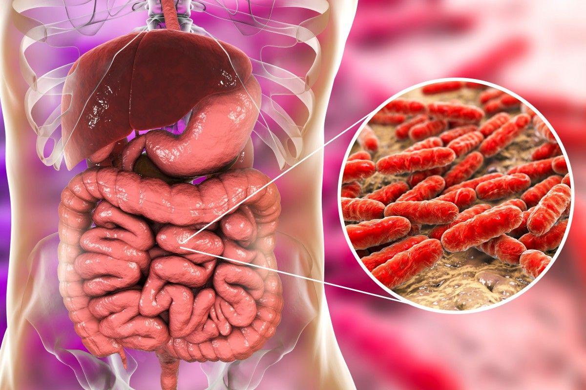 Как вылечить дисбактериоз кишечника у взрослого: симптомы, причины развития, методы лечения, обзор препаратов
