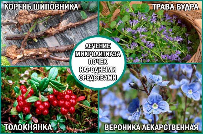 Микроуролитиаз что это такое - wikinefrologiya.ru