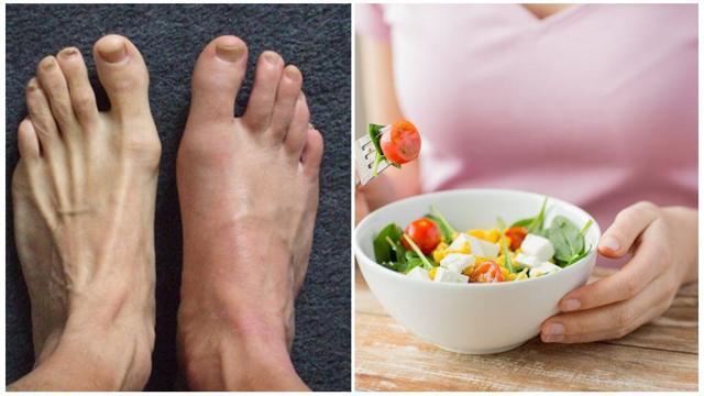Подагра: признаки и лечение у мужчин, причины болезни