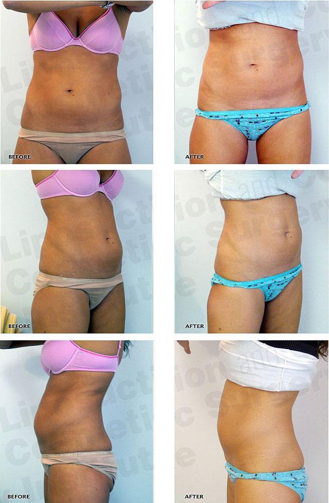 Криолиполиз, что это такое в косметологии, фото до и после, отзывы, видео, можно ли использовать при целлюлите