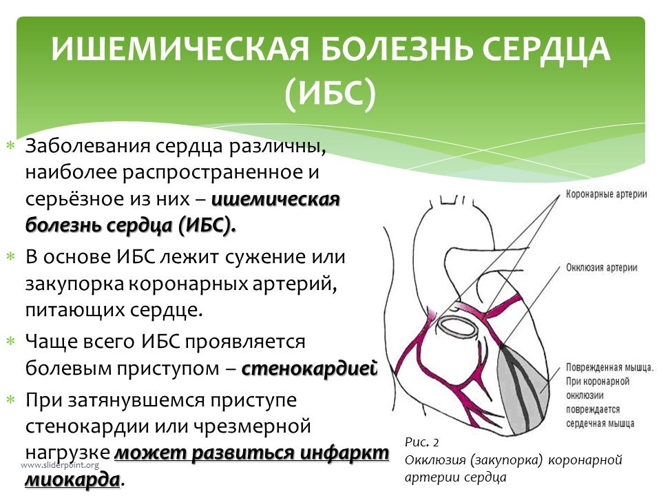 Ишемическая болезнь сердца, что это? симптомы и лечение