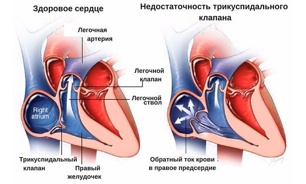 Митральная регургитация 1-4 степени: что это такое, симптомы и лечение, прогноз