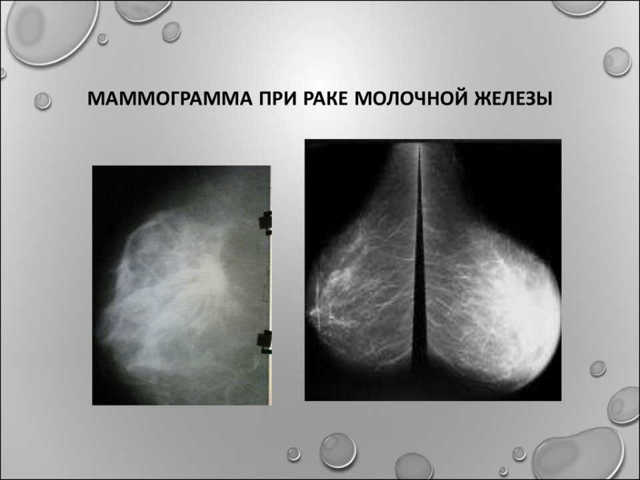 Маммография — что это такое, и с какого возраста ее делают?
