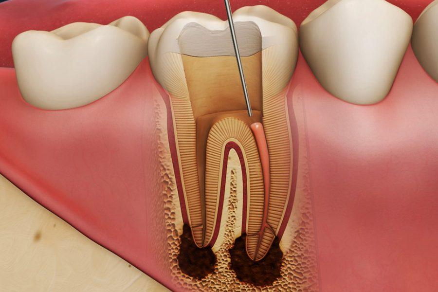 2.клеточный состав пульпы зуба. клеточные слои.