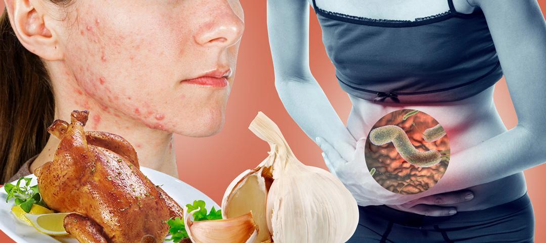 Глисты у человека — симптомы глистов у взрослых и способы лечение - proinfekcii.ru