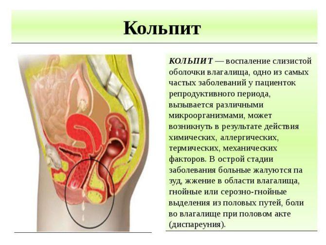Хронический вагинит (кольпит): причины, симптомы, диагностика и лечение, профилактика, последствия