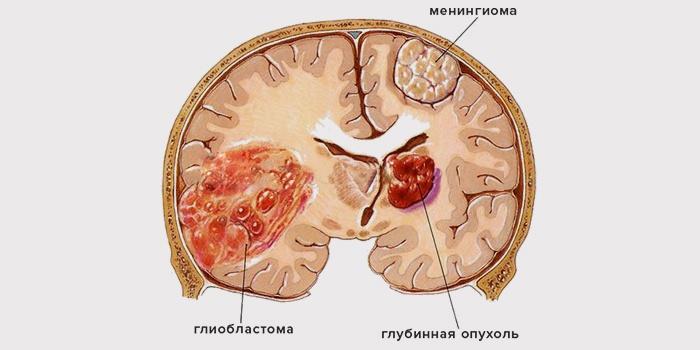 Поддается ли лечению глиобластома и насколько страшен диагноз?