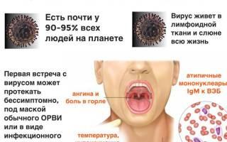 Вирус эпштейна-барр: симптомы инфекции, диагностика и лечение вэб
