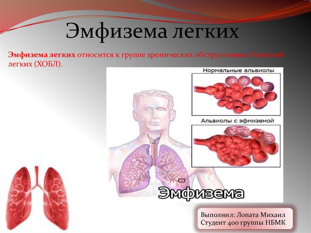 Буллёзная болезнь лёгких - правильное лечение