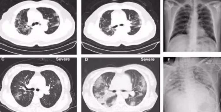 В лёгких больных коронавирусной инфекцией обнаружен симптом «матовое стекло»