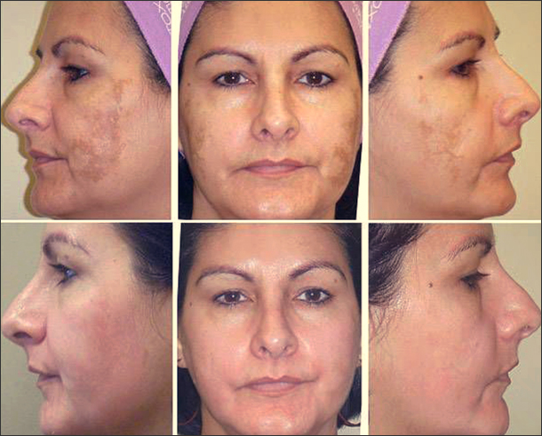 Что такое энзимный пилинг для лица и тела