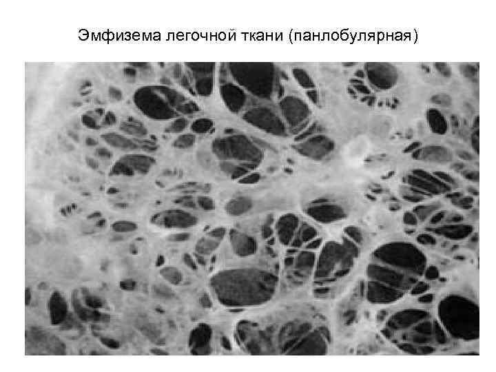 Эмфизема легких – пневмосклероз. всё от симптомов и лечения – до диагностики и профилактики