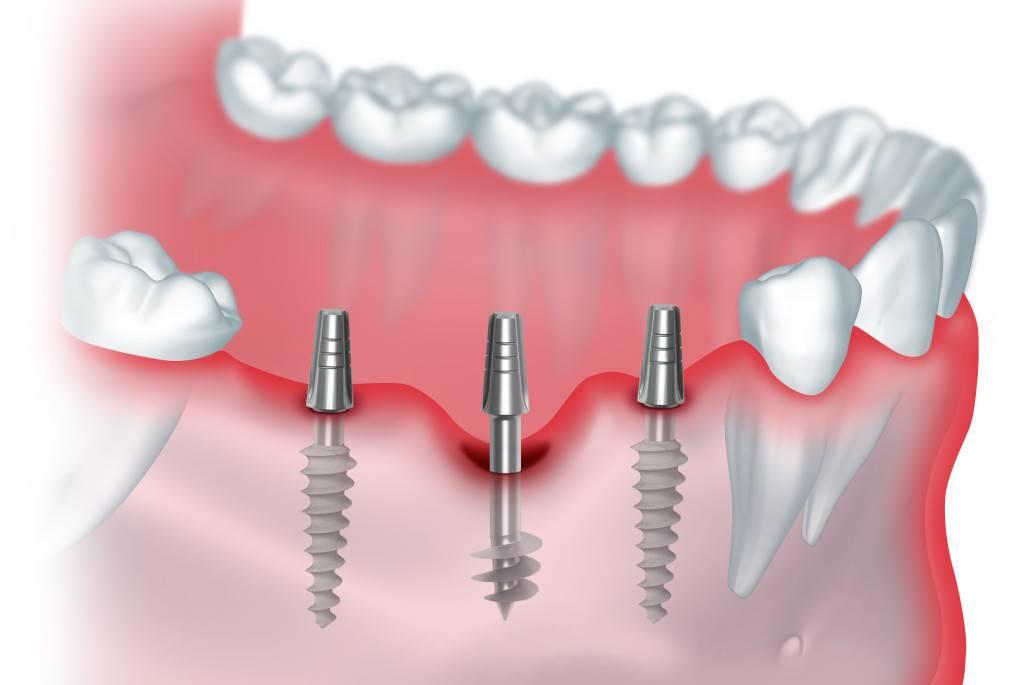 Где лучше сделать имплантацию зубов? полезные советы по выбору