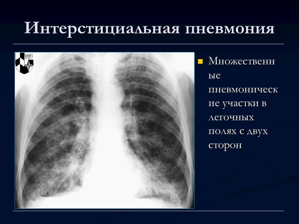 Интерстициальная пневмония у взрослых симптомы и лечение | целебные свойства растений