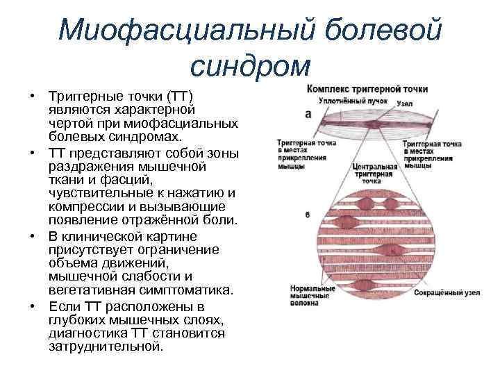 Причины миофасциального болевого синдрома лица и методы его лечения