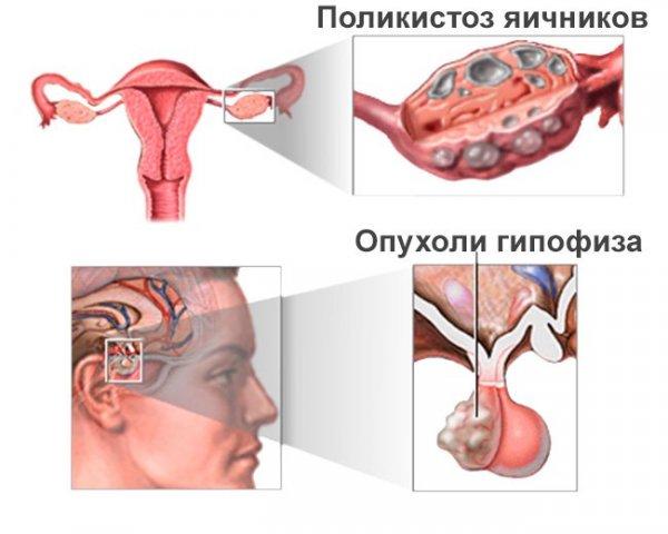 Что это такое и можно ли забеременеть при олигоменорее. олигоменорея: виды, причины, диагностика, лечение вторичная олигоменорея лечение