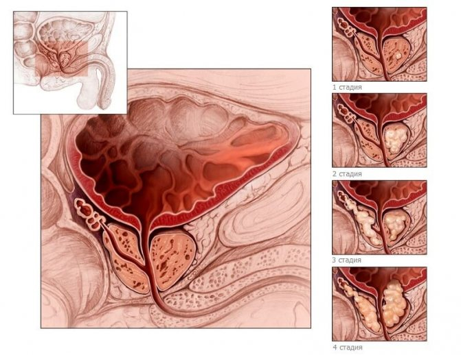 Что это такое узловая гиперплазия предстательной железы и как от нее избавиться