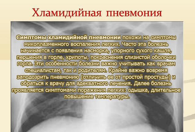 Хламидии: причины, симптомы, лечение
