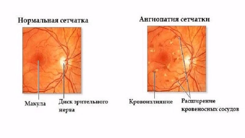 Ангиопатия сетчатки глаза: причины, описание симптомов, лечение, прогноз