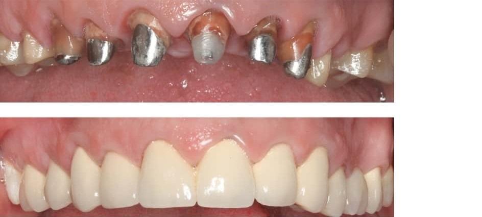 Виды коронок на зубы: какие бывают, что лучше, стоимость