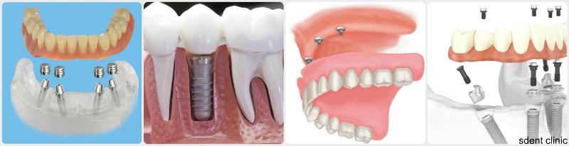 Съемное протезирование зубов - виды, цены, отзывы какие лучше