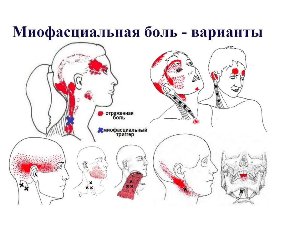 Цервикалгия шейного отдела позвоночника — что это, симптомы и лечение